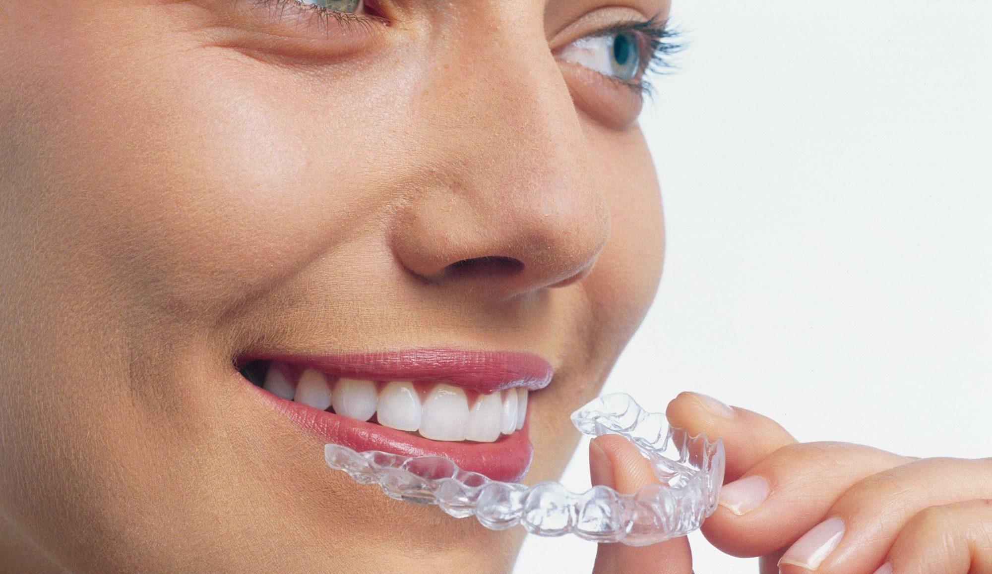 Une orthodontie efficace, discrète pour une satisfaction esthétique.